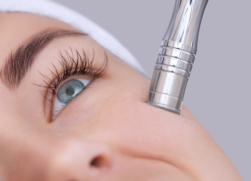 Image for Microdermabrasion