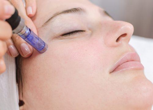 Image for Microneedling